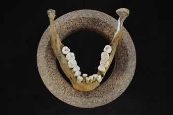 Malocclusion on Lower jaw and teeth of Early Neolithic farmer (Credit: Olivia Cheronet)