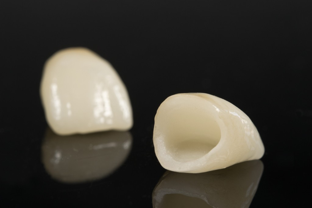 Porcelain Crown in Cancun teeth tooth
