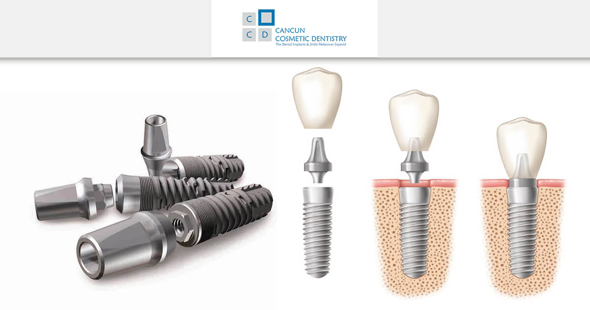 What are dental implants? - Cancun Cosmetic Dentistry