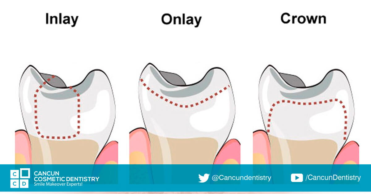 Inlays, onlays or ovelays? What's the right one for you?