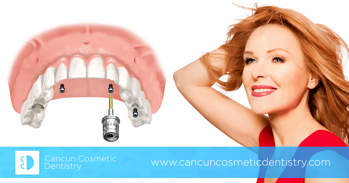 Get All-on-4 dental implants in parts in Cancun Cosmetic Dentistry!