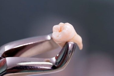 wisdom-tooth-extraction-cancun-cosmetic-dentistry-