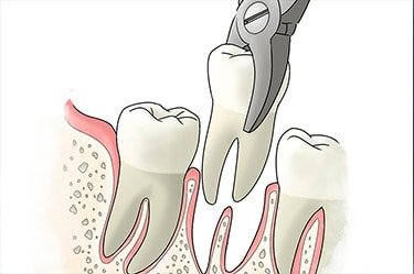 wisdom-tooth-extraction-cancun-cosmetic-dentistry--2