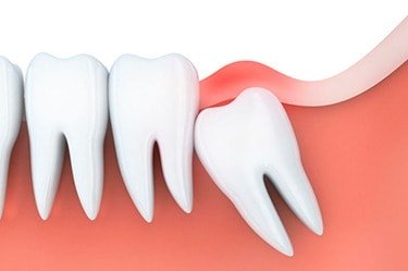 wisdom-tooth-extraction-cancun-cosmetic-dentistry-3