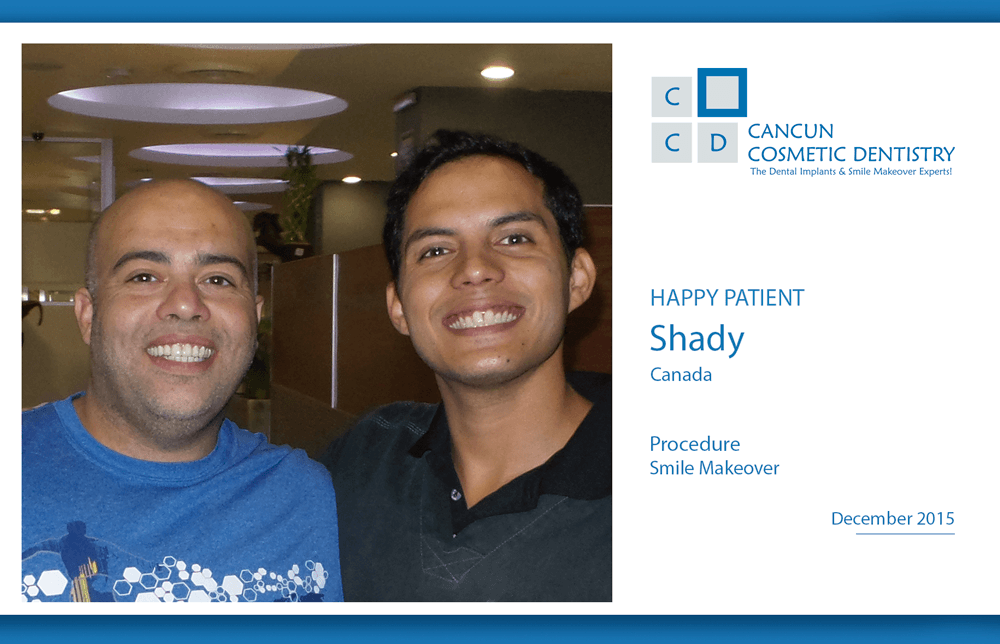 Low Cost of Smile Makeover in Cancun Cosmetic Dentistry