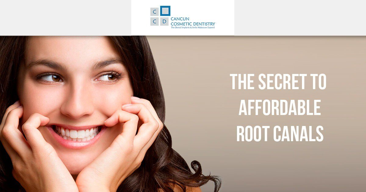 Affordable root canals in Cancun - Check the price