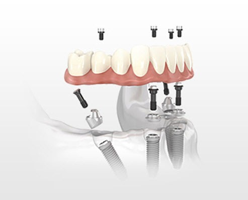 All on 4 dental implants in Cancun by Nobel Biocare and German Arzate DDS