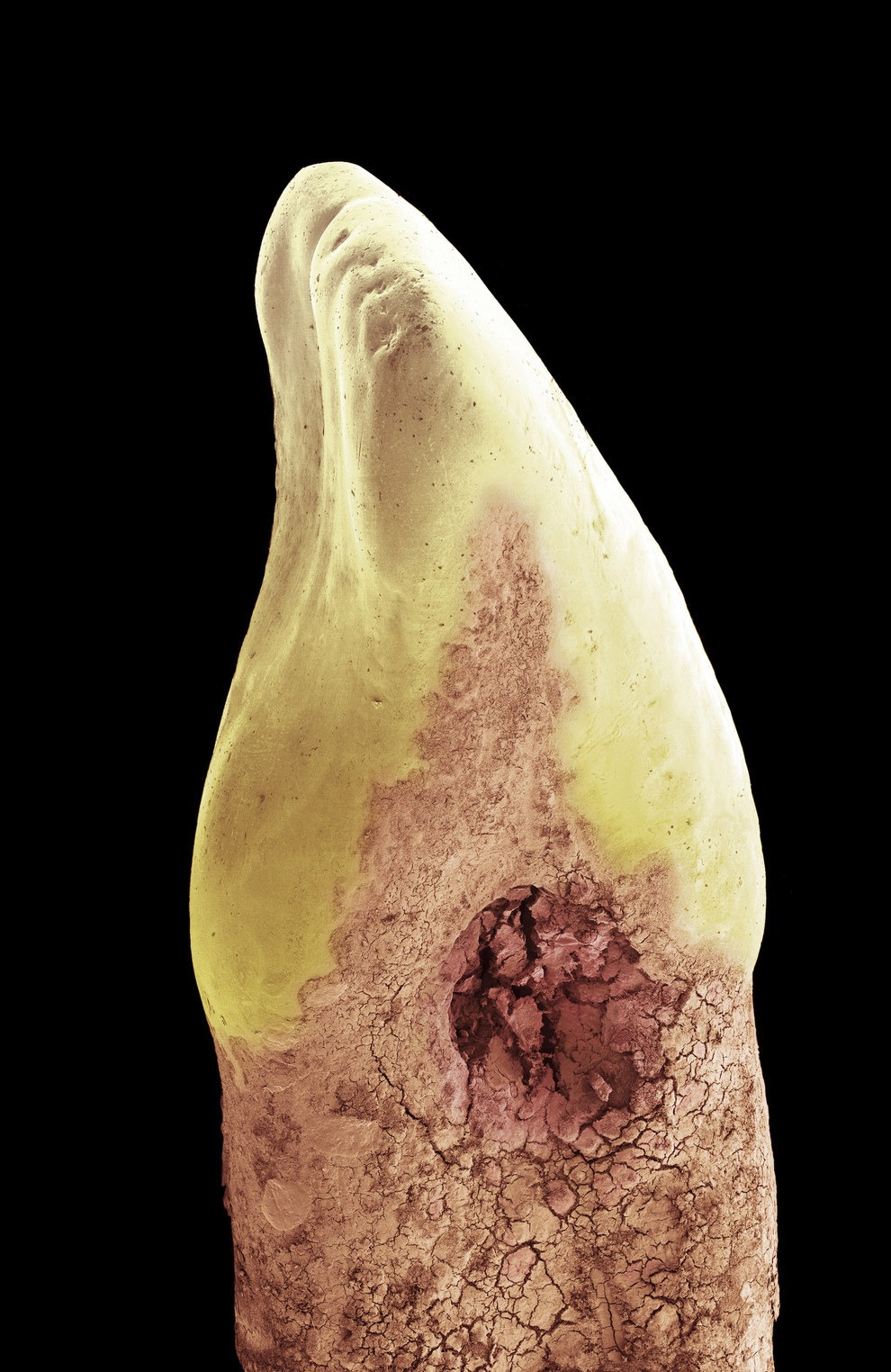 Microscopic photo of cavity