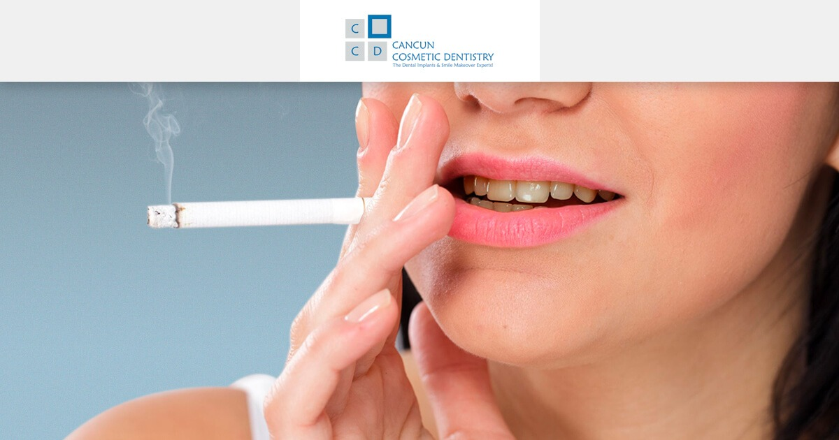 Dental Implants and Smoking. Healing effects on dental procedures in Cancun Cosmetic Dentistry