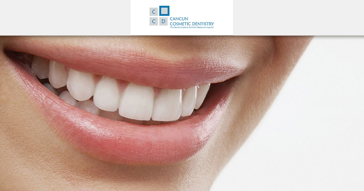 What is a dental restoration? - Cancun Cosmetic Dentistry
