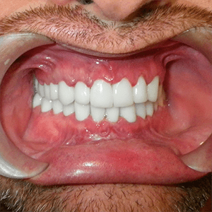 h-3-dental-crowns-dentist-cancun-affordable