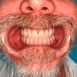 snaps2-4-snap-in-dentures-implants-cancun-1