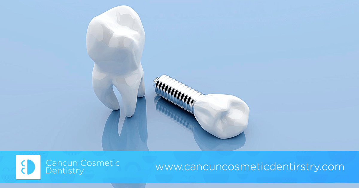 Are there any complications with dental implants? - Cancun Cosmetic Dentistry