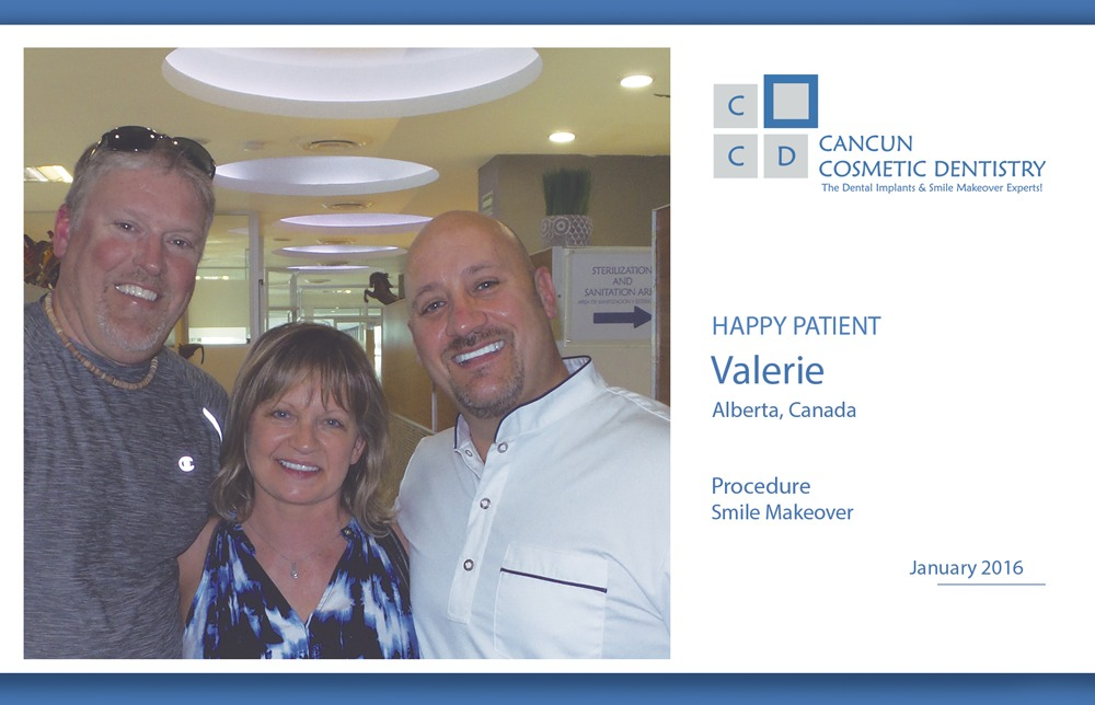 Low cost Smile makeover in Cancun Cosmetic Dentistry