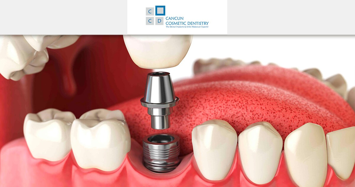 What are dental prostheses? Dental Implants, Dentures, Partials, Bars in Cancun Cosmetic Dentistry